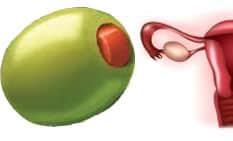 Маслини – яйчници